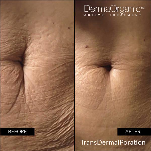 advanced organic skin regeneration treatment